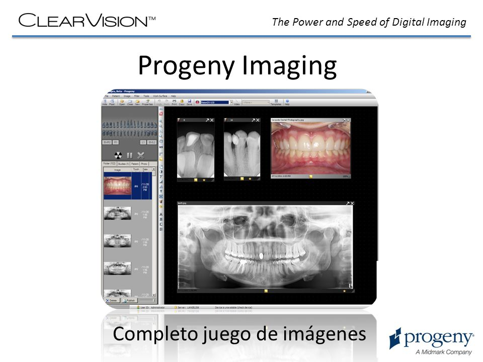 The Power and Speed of Digital Imaging Progeny Imaging Completo juego de imágenes