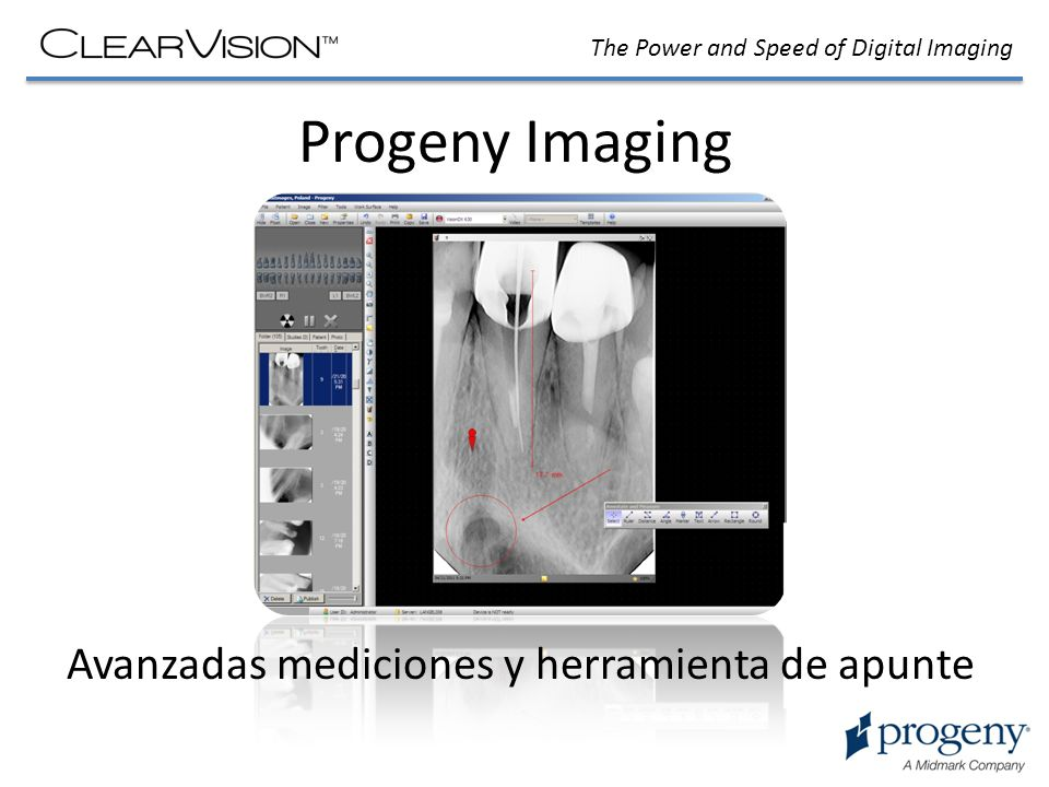 The Power and Speed of Digital Imaging Progeny Imaging Avanzadas mediciones y herramienta de apunte