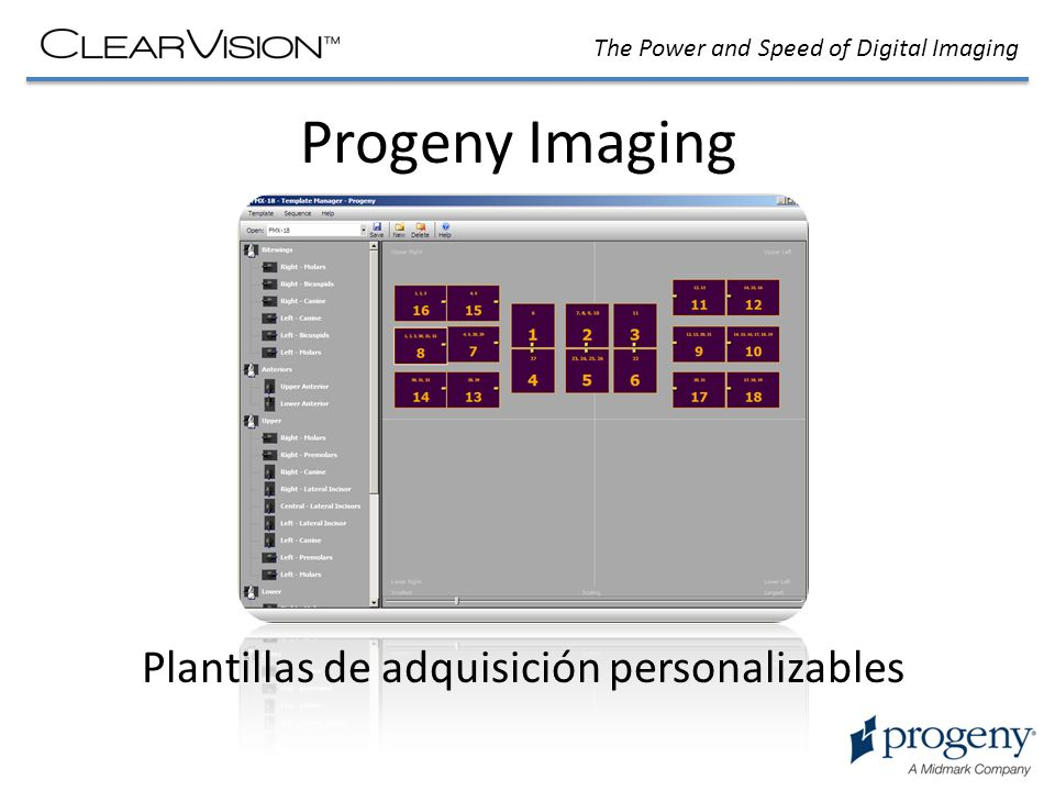 The Power and Speed of Digital Imaging Progeny Imaging Plantillas de adquisición personalizables