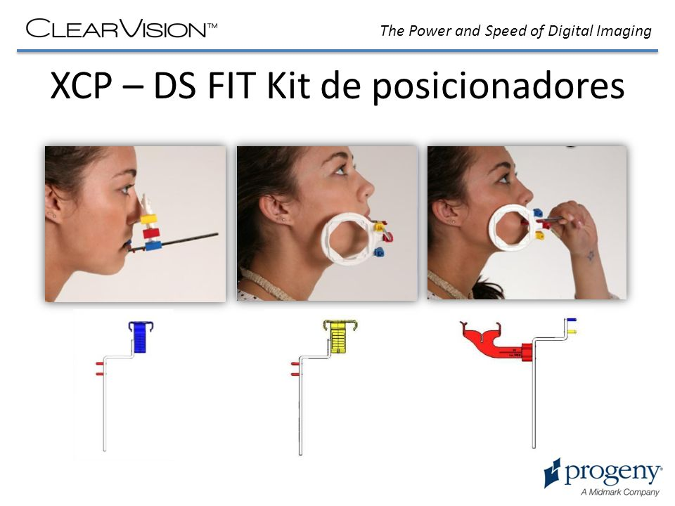 The Power and Speed of Digital Imaging XCP – DS FIT Kit de posicionadores
