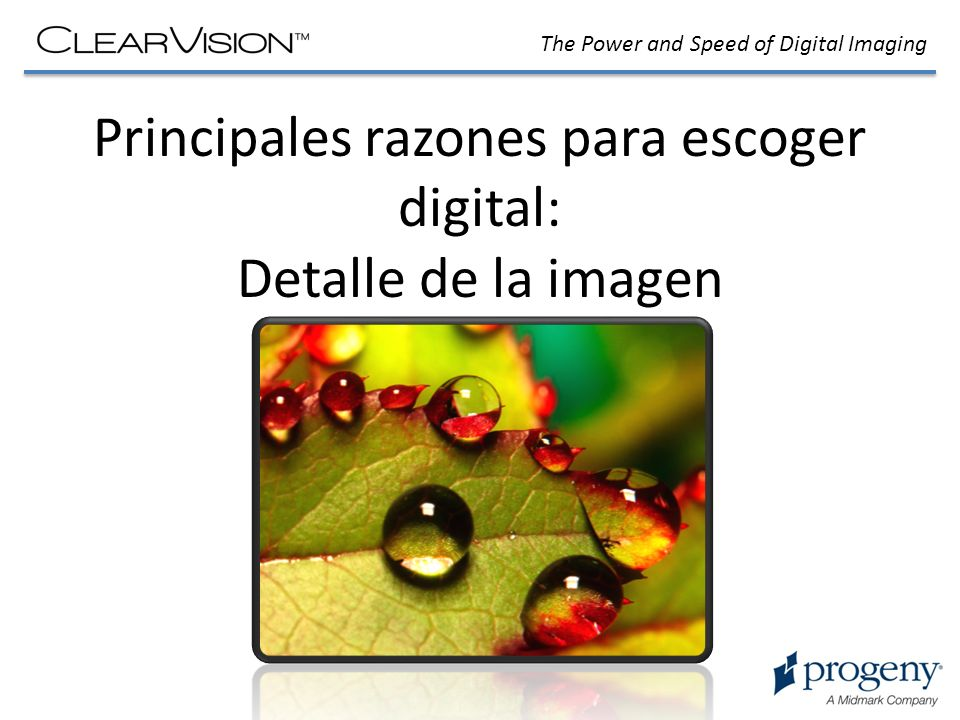 The Power and Speed of Digital Imaging Principales razones para escoger digital: Detalle de la imagen