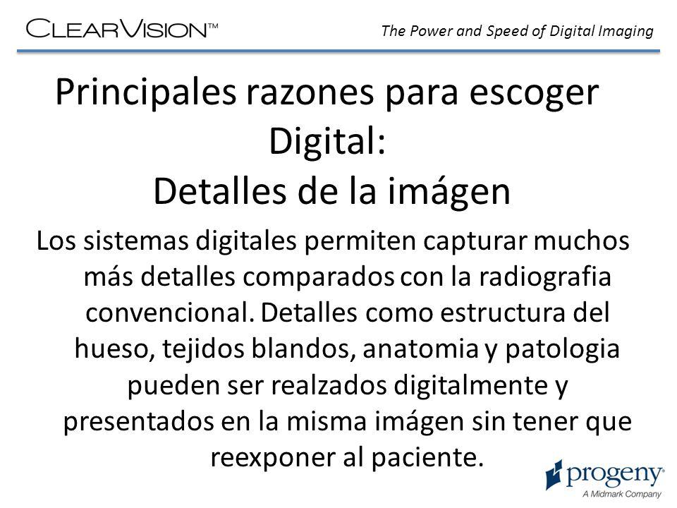 The Power and Speed of Digital Imaging Principales razones para elegir Digital: Velocidad