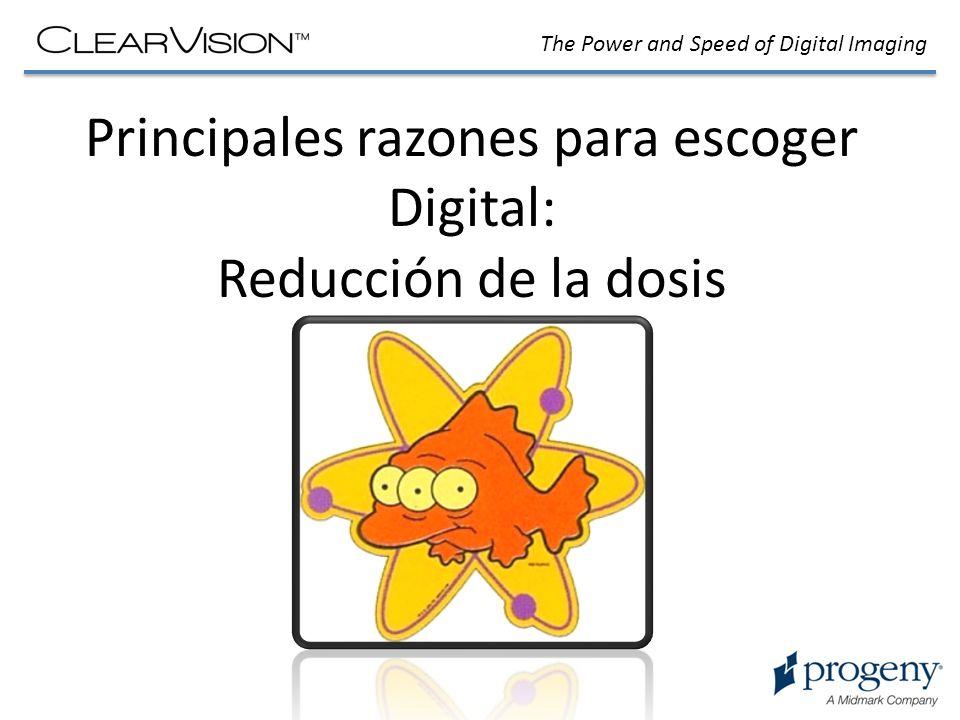 The Power and Speed of Digital Imaging Principales razones para escoger Digital: Reducción de la dosis Los sistemas digitales trabajan con una reducción significativa de la dosis en comparación a la película convencional.