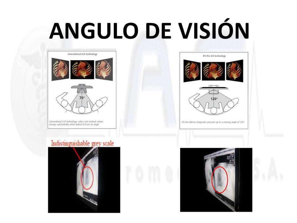 ANGULO DE VISIÓN