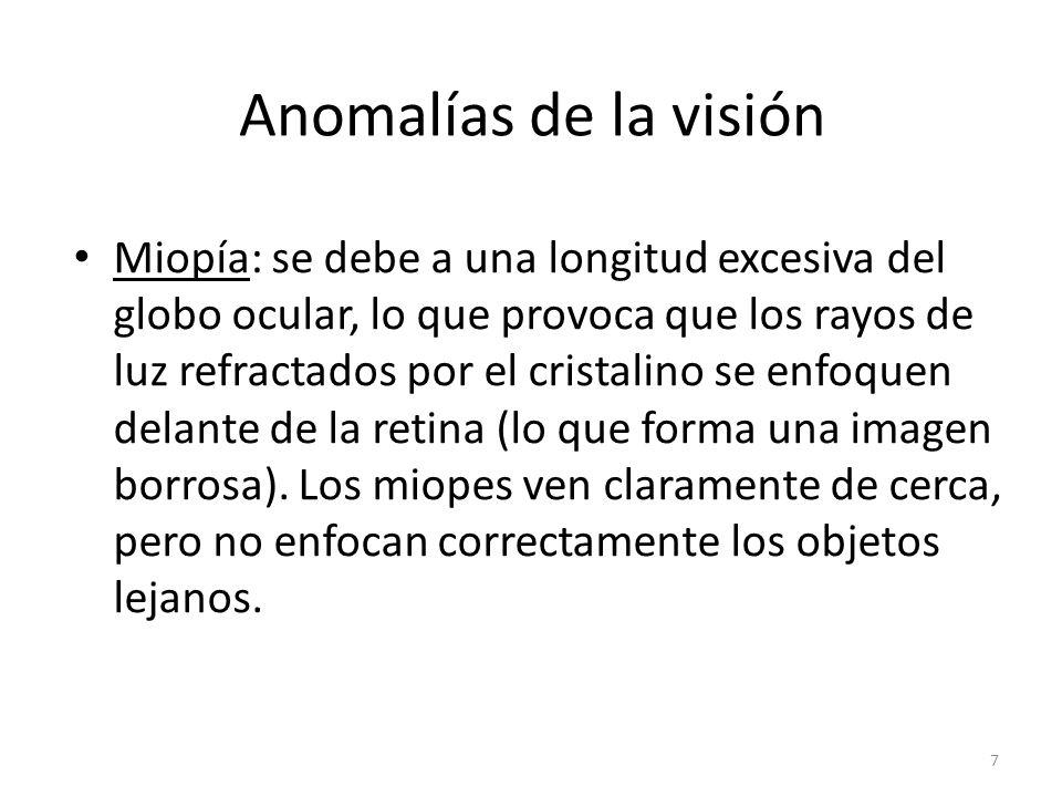 Anomalías de la visión Miopía: se debe a una longitud excesiva del globo ocular, lo que provoca que los rayos de luz refractados por el cristalino se enfoquen delante de la retina (lo que forma una imagen borrosa).