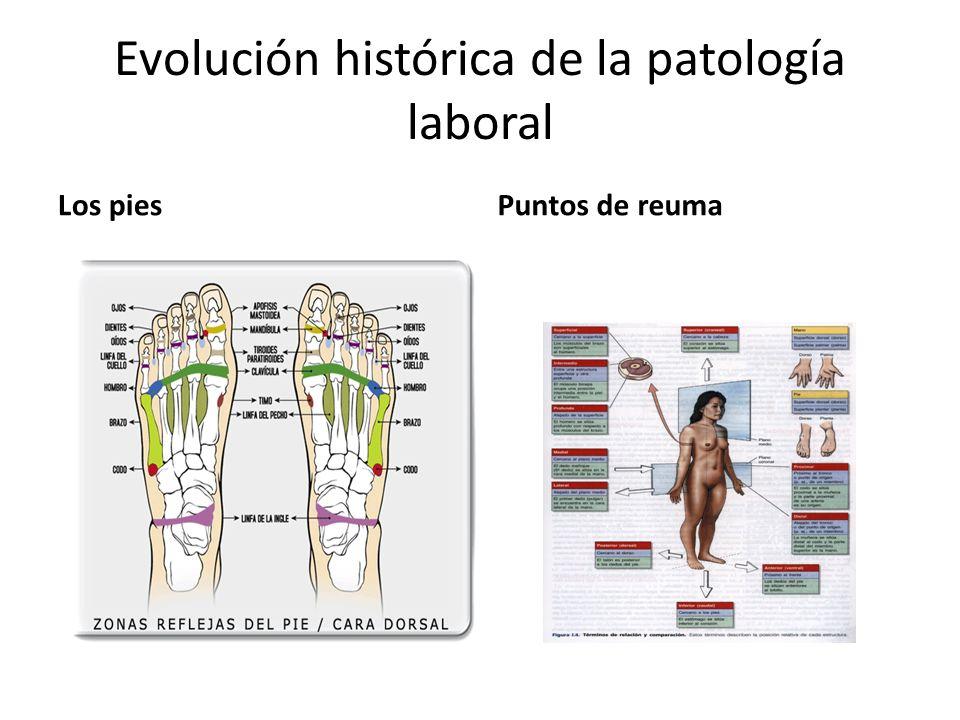 Evolución histórica de la patología laboral Los piesPuntos de reuma