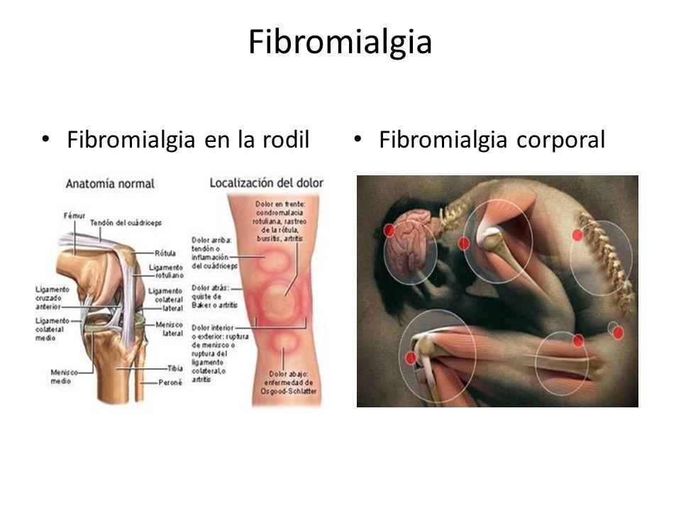 Fibromialgia Fibromialgia en la rodil Fibromialgia corporal