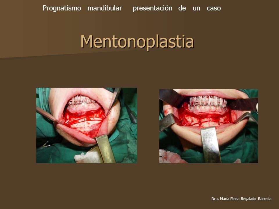 Mentonoplastia Prognatismo mandibular presentación de un caso Dra. María Elena Regalado Barreda