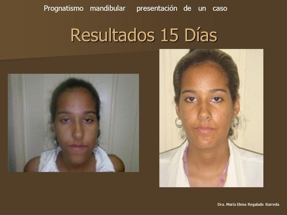 Resultados 15 Días Prognatismo mandibular presentación de un caso Dra. María Elena Regalado Barreda