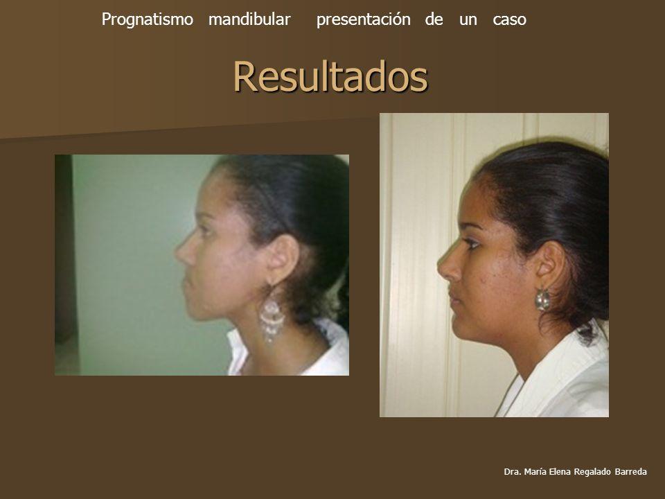 Resultados Prognatismo mandibular presentación de un caso Dra. María Elena Regalado Barreda