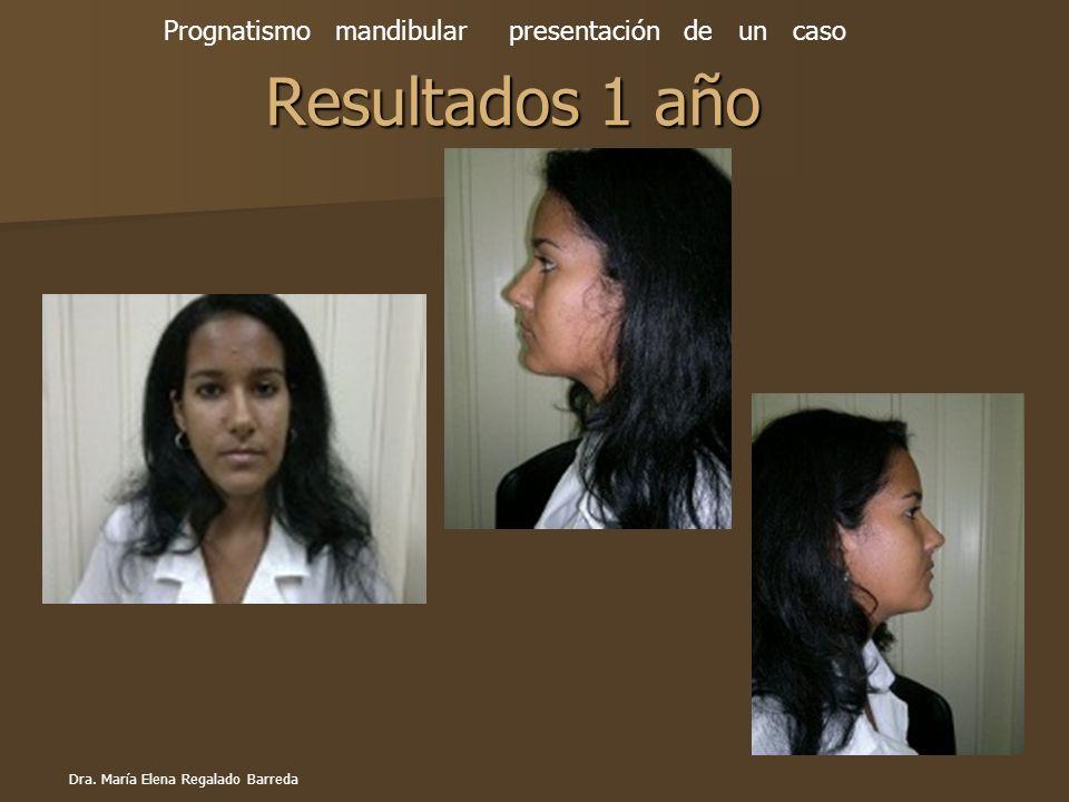Resultados 1 año Prognatismo mandibular presentación de un caso Dra. María Elena Regalado Barreda