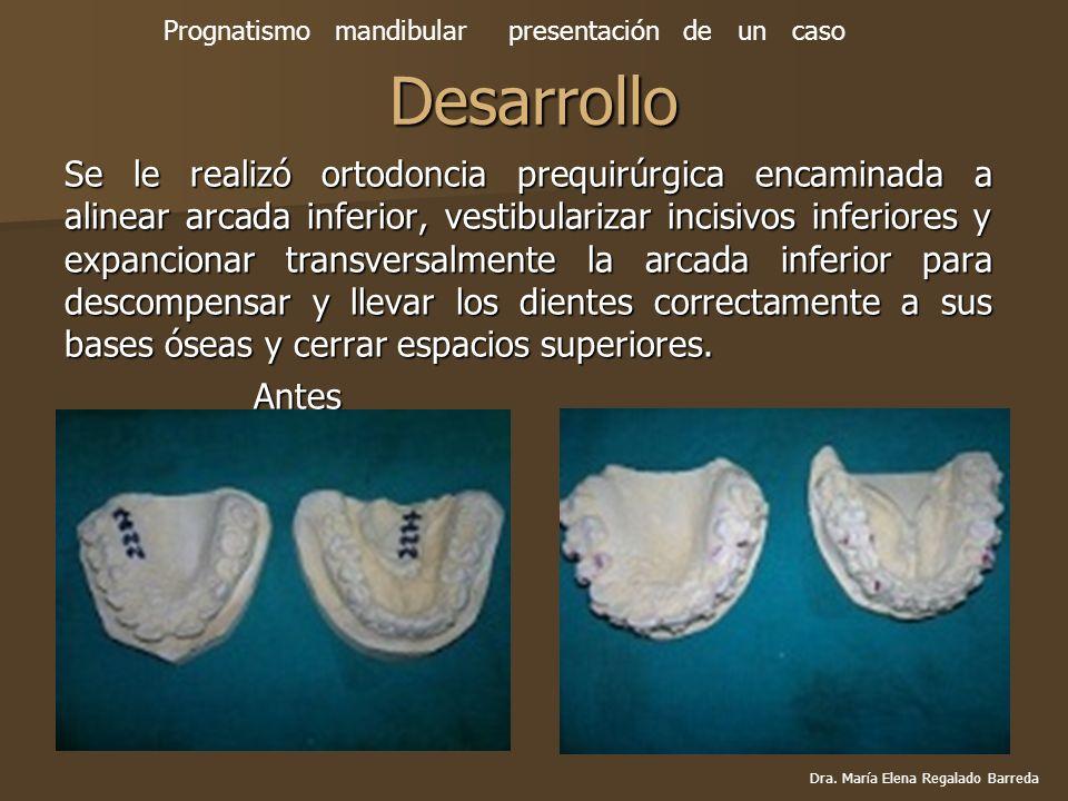 Desarrollo Se le realizó ortodoncia prequirúrgica encaminada a alinear arcada inferior, vestibularizar incisivos inferiores y expancionar transversalm