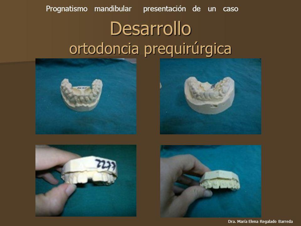 Desarrollo ortodoncia prequirúrgica Prognatismo mandibular presentación de un caso Dra. María Elena Regalado Barreda