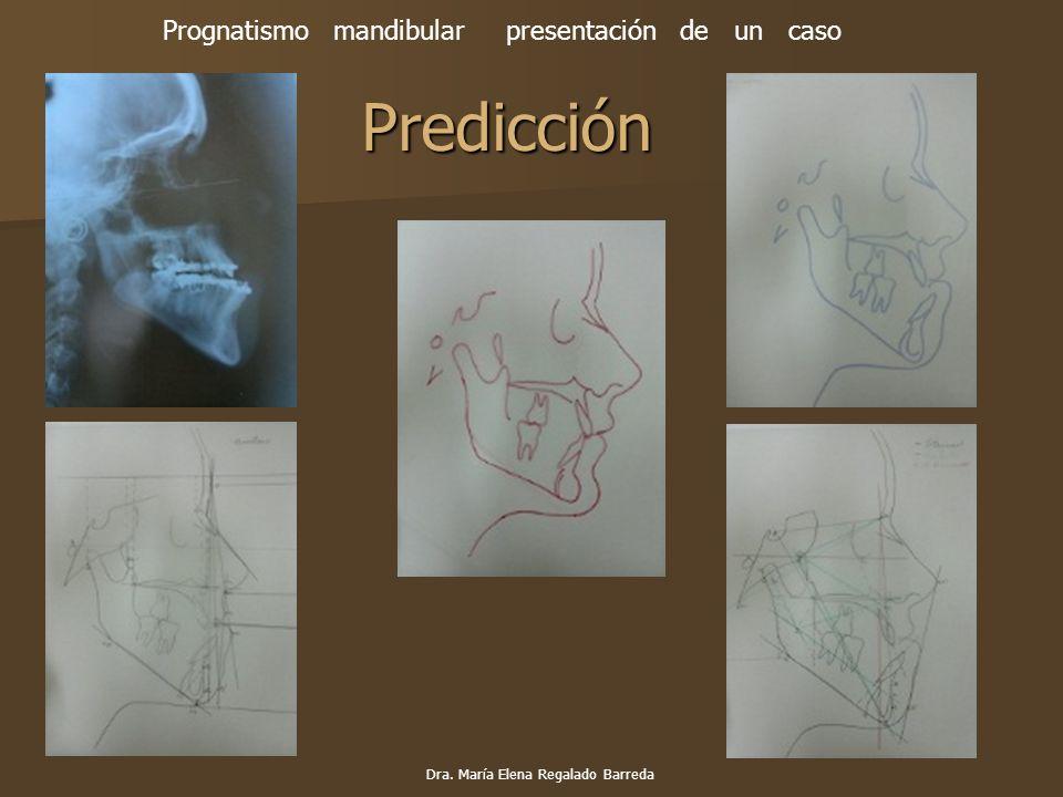 Predicción Prognatismo mandibular presentación de un caso Dra. María Elena Regalado Barreda