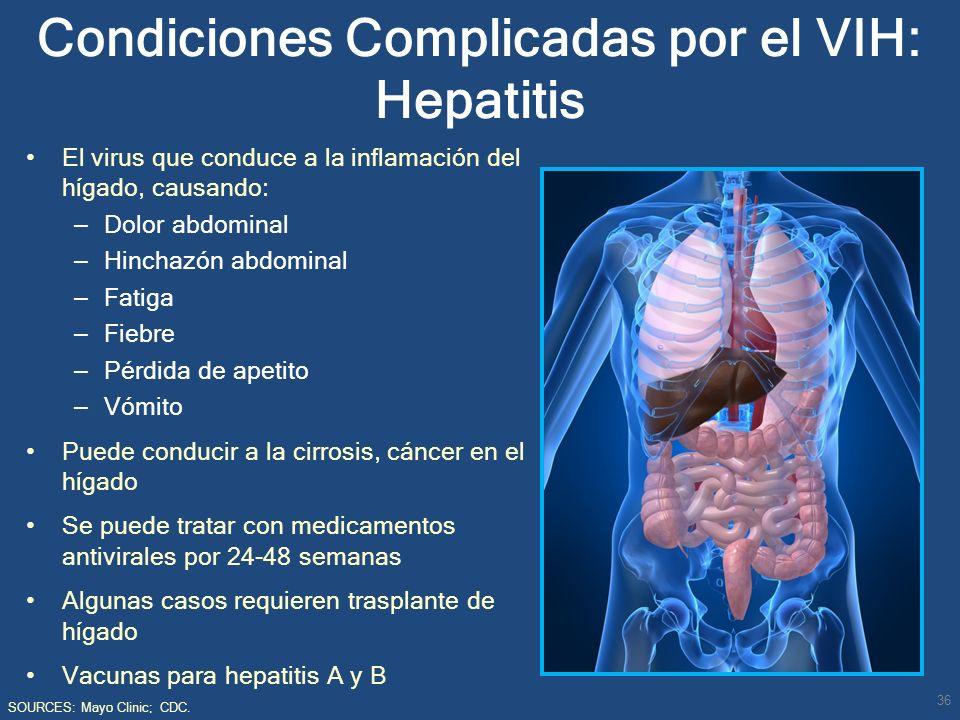 Condiciones Complicadas por el VIH: Hepatitis El virus que conduce a la inflamación del hígado, causando: – Dolor abdominal – Hinchazón abdominal – Fa