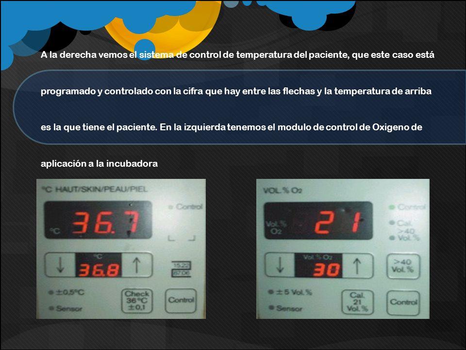 A la derecha vemos el sistema de control de temperatura del paciente, que este caso está programado y controlado con la cifra que hay entre las flecha
