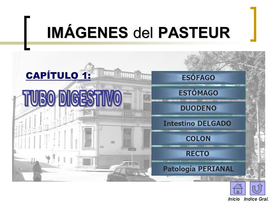 IMÁGENES del PASTEUR ESÓFAGO ESTÓMAGO DUODENO Intestino DELGADO COLON RECTO Patología PERIANAL CAPÍTULO 1: Inicio Indice Gral.