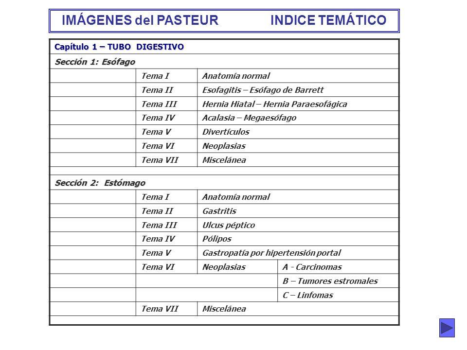 ...... Capítulo 1 – TUBO DIGESTIVO Sección 1: Esófago Tema IAnatomía normal Tema IIEsofagitis – Esófago de Barrett Tema IIIHernia Hiatal – Hernia Para