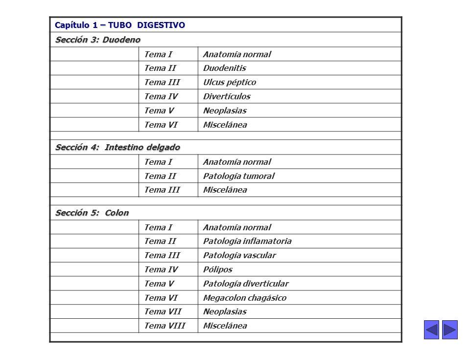 ...... Capítulo 1 – TUBO DIGESTIVO Sección 3: Duodeno Tema IAnatomía normal Tema IIDuodenitis Tema IIIUlcus péptico Tema IVDivertículos Tema VNeoplasi