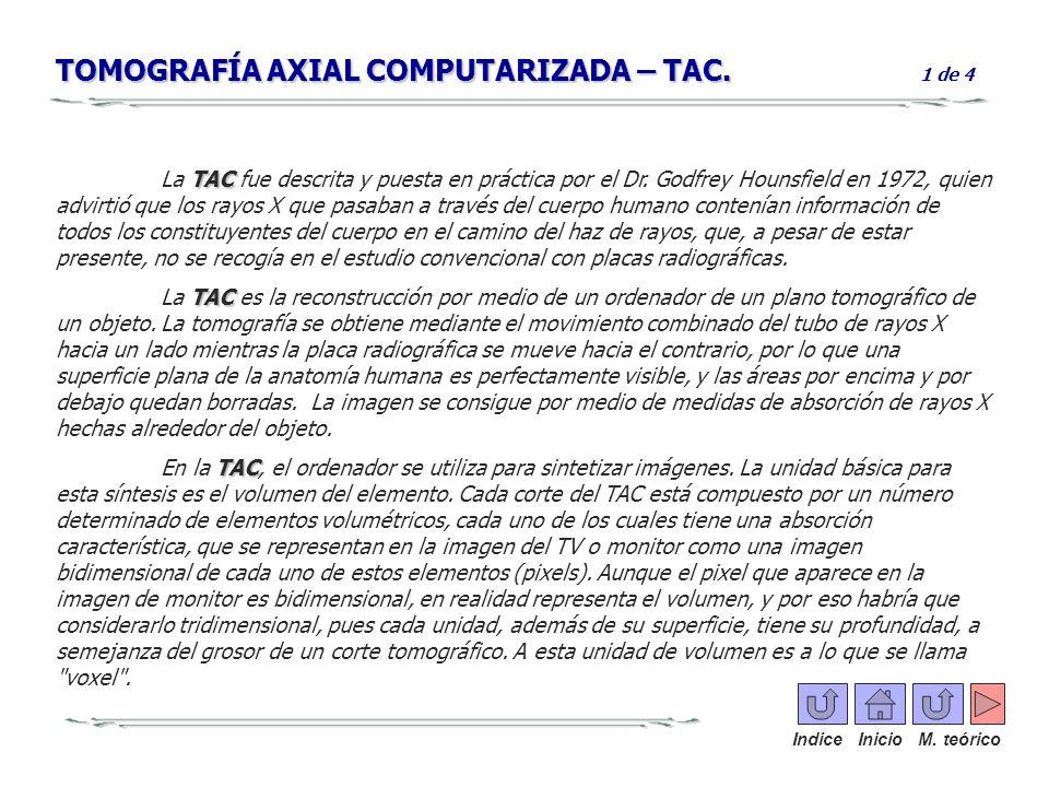 TOMOGRAFÍA AXIAL COMPUTARIZADA – TAC. TOMOGRAFÍA AXIAL COMPUTARIZADA – TAC. 1 de 4 TAC La TAC fue descrita y puesta en práctica por el Dr. Godfrey Hou