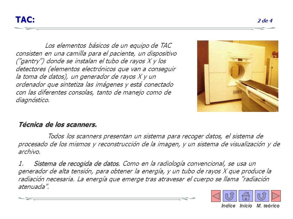 Los elementos básicos de un equipo de TAC consisten en una camilla para el paciente, un dispositivo (