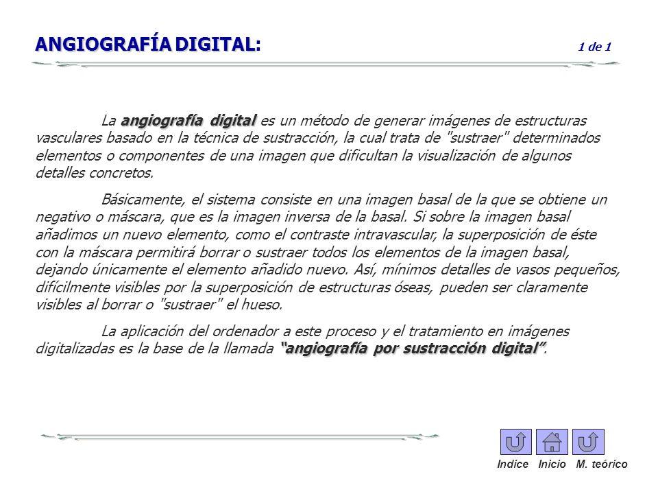 ANGIOGRAFÍA DIGITAL ANGIOGRAFÍA DIGITAL: 1 de 1 angiografía digital La angiografía digital es un método de generar imágenes de estructuras vasculares