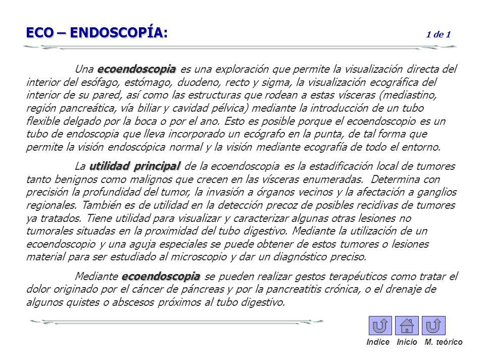 ECO – ENDOSCOPÍA ECO – ENDOSCOPÍA: 1 de 1 ecoendoscopia Una ecoendoscopia es una exploración que permite la visualización directa del interior del esó