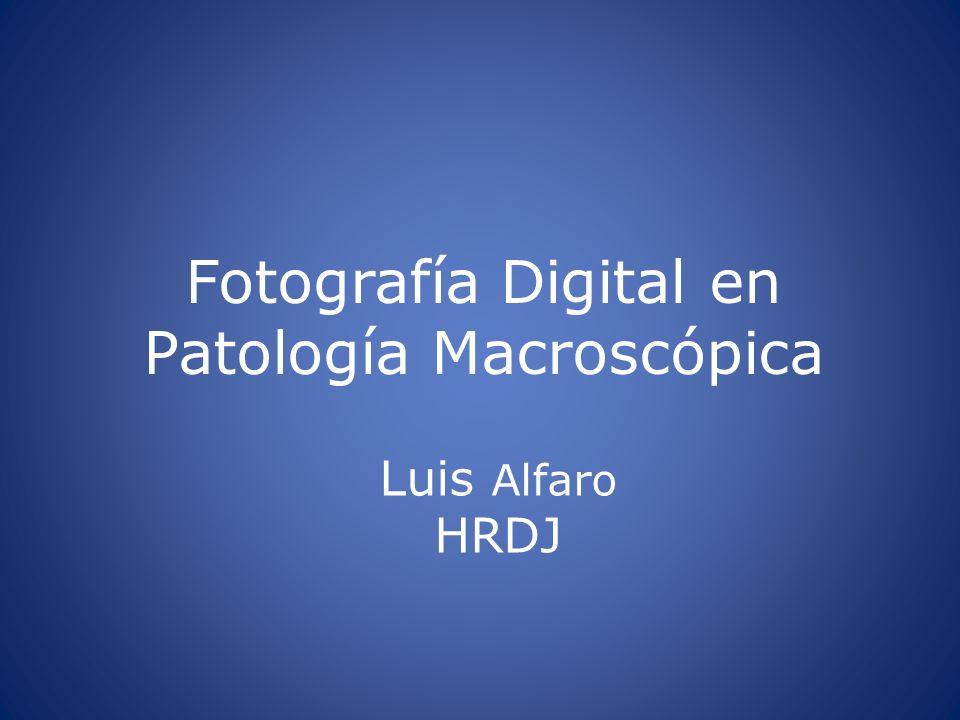 Fotografía Digital en Patología Macroscópica Luis Alfaro HRDJ