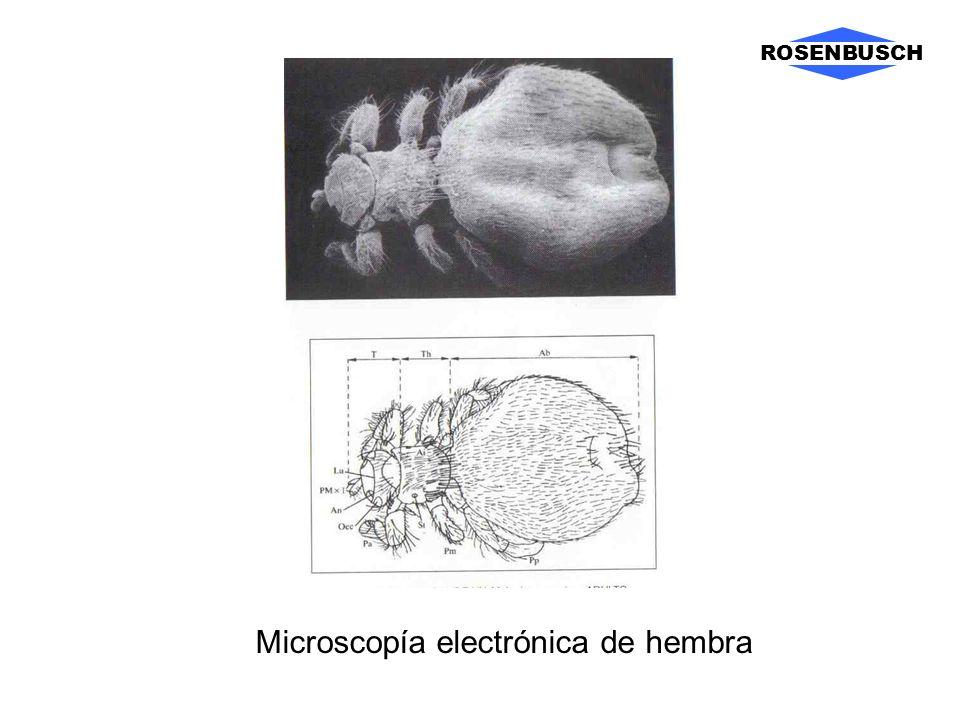 ROSENBUSCH Microscopía electrónica de hembra