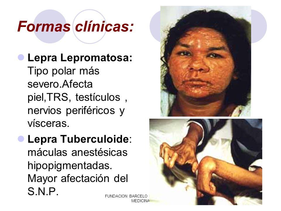 FUNDACION BARCELO FACULTAD DE MEDICINA Formas clínicas: Lepra Lepromatosa: Tipo polar más severo.Afecta piel,TRS, testículos, nervios periféricos y ví