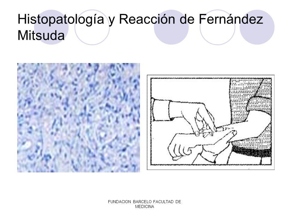FUNDACION BARCELO FACULTAD DE MEDICINA Histopatología y Reacción de Fernández Mitsuda