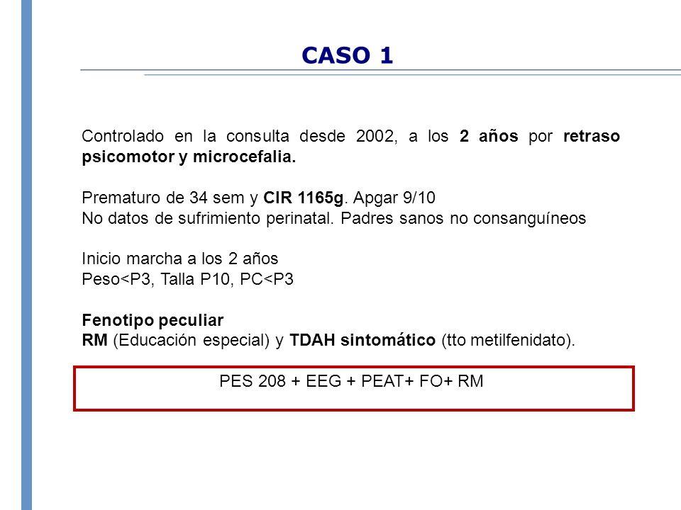 CASO 1 Controlado en la consulta desde 2002, a los 2 años por retraso psicomotor y microcefalia. Prematuro de 34 sem y CIR 1165g. Apgar 9/10 No datos