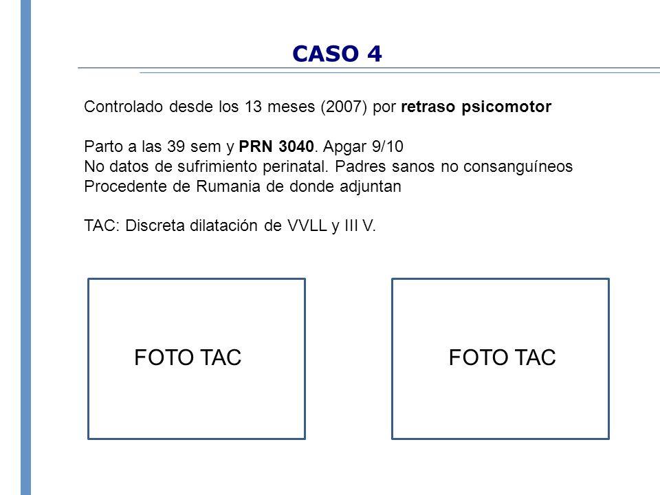 CASO 4 Controlado desde los 13 meses (2007) por retraso psicomotor Parto a las 39 sem y PRN 3040. Apgar 9/10 No datos de sufrimiento perinatal. Padres