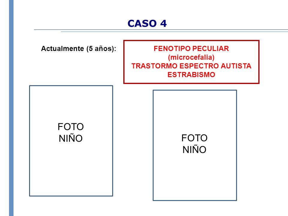 CASO 4 FENOTIPO PECULIAR (microcefalia) TRASTORMO ESPECTRO AUTISTA ESTRABISMO Actualmente (5 años): FOTO NIÑO