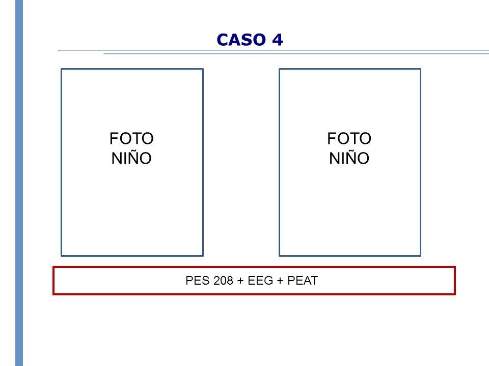 CASO 4 PES 208 + EEG + PEAT FOTO NIÑO