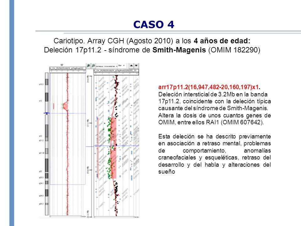 CASO 4 Cariotipo. Array CGH (Agosto 2010) a los 4 años de edad: Deleción 17p11.2 - síndrome de Smith-Magenis (OMIM 182290) arr17p11.2(16,947,482-20,16