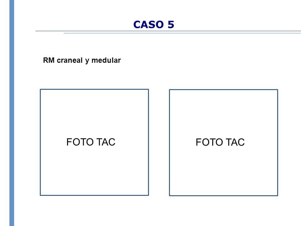 CASO 5 RM craneal y medular FOTO TAC