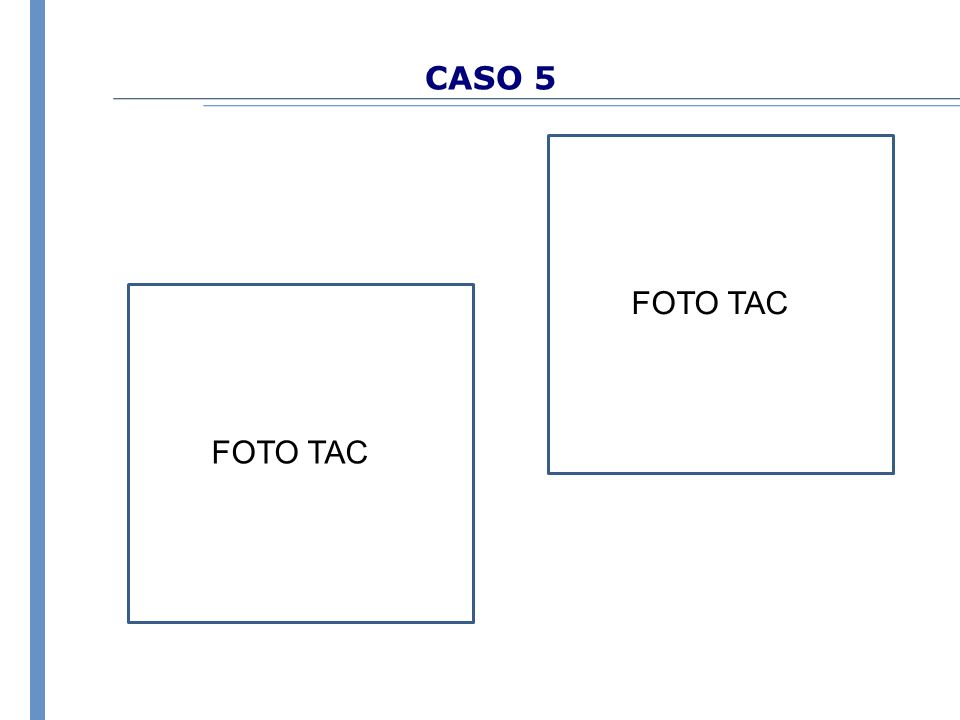 CASO 5 FOTO TAC