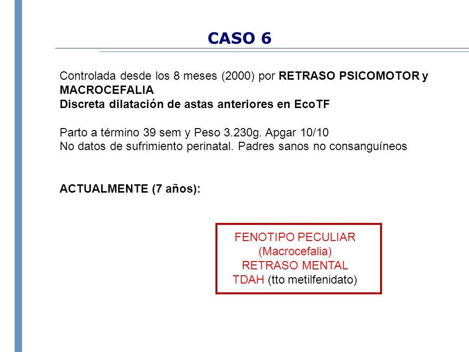 CASO 6 Controlada desde los 8 meses (2000) por RETRASO PSICOMOTOR y MACROCEFALIA Discreta dilatación de astas anteriores en EcoTF Parto a término 39 s
