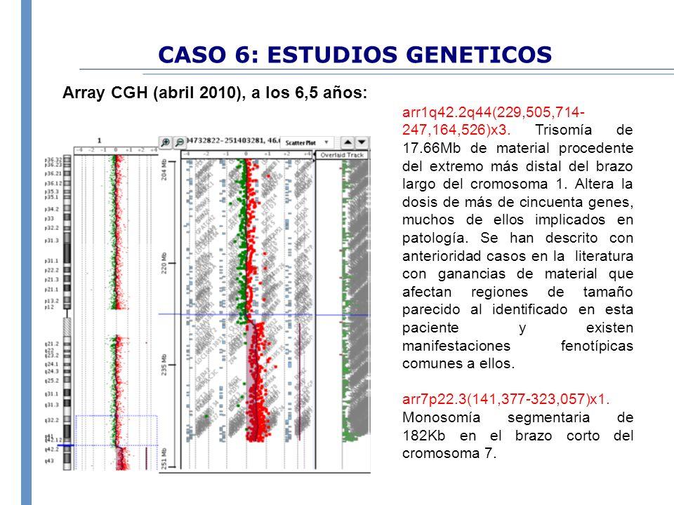CASO 6: ESTUDIOS GENETICOS Array CGH (abril 2010), a los 6,5 años: arr1q42.2q44(229,505,714- 247,164,526)x3. Trisomía de 17.66Mb de material procedent