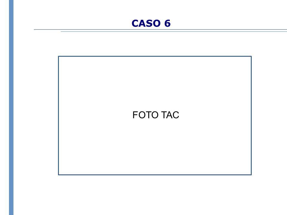 CASO 6 FOTO TAC