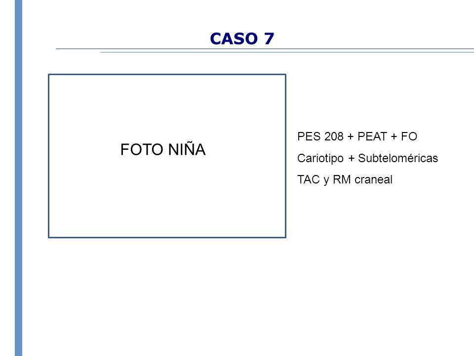CASO 7 PES 208 + PEAT + FO Cariotipo + Subteloméricas TAC y RM craneal FOTO NIÑA