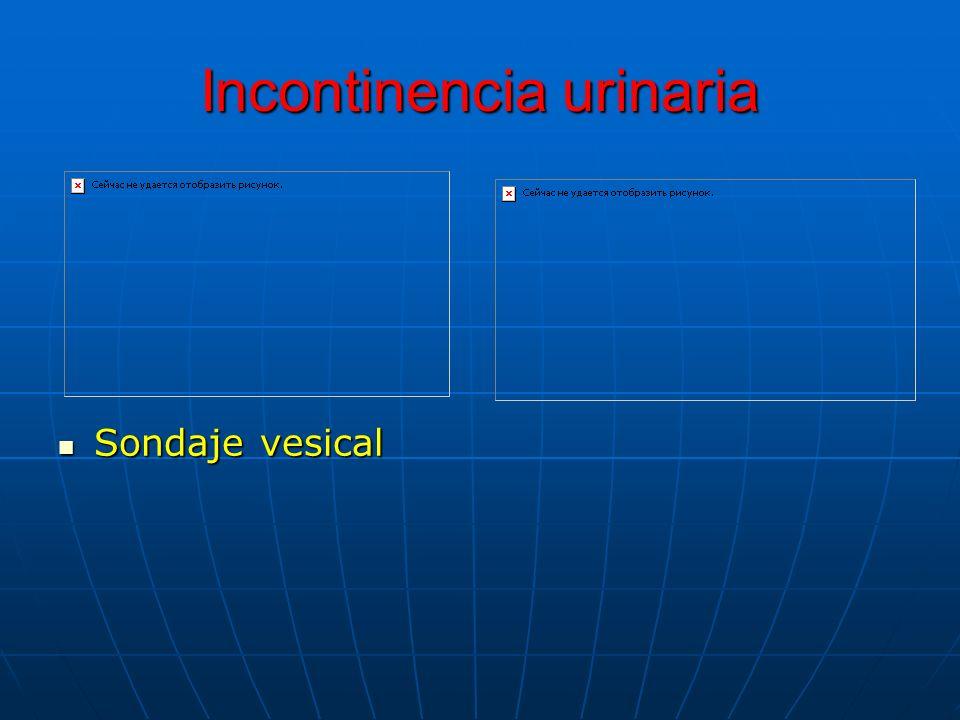 Incontinencia urinaria Sondaje vesical Sondaje vesical