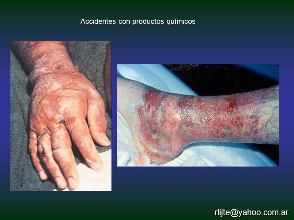 Accidentes con productos químicos rlijte@yahoo.com.ar