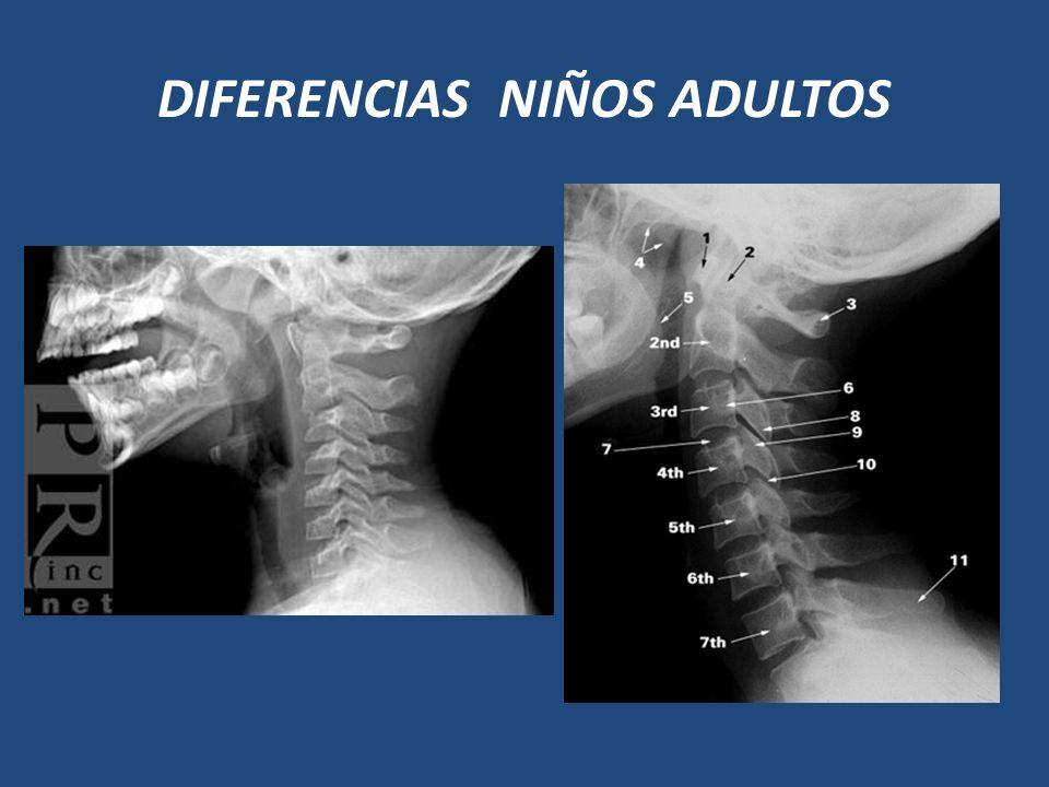 DIFERENCIAS NIÑOS ADULTOS