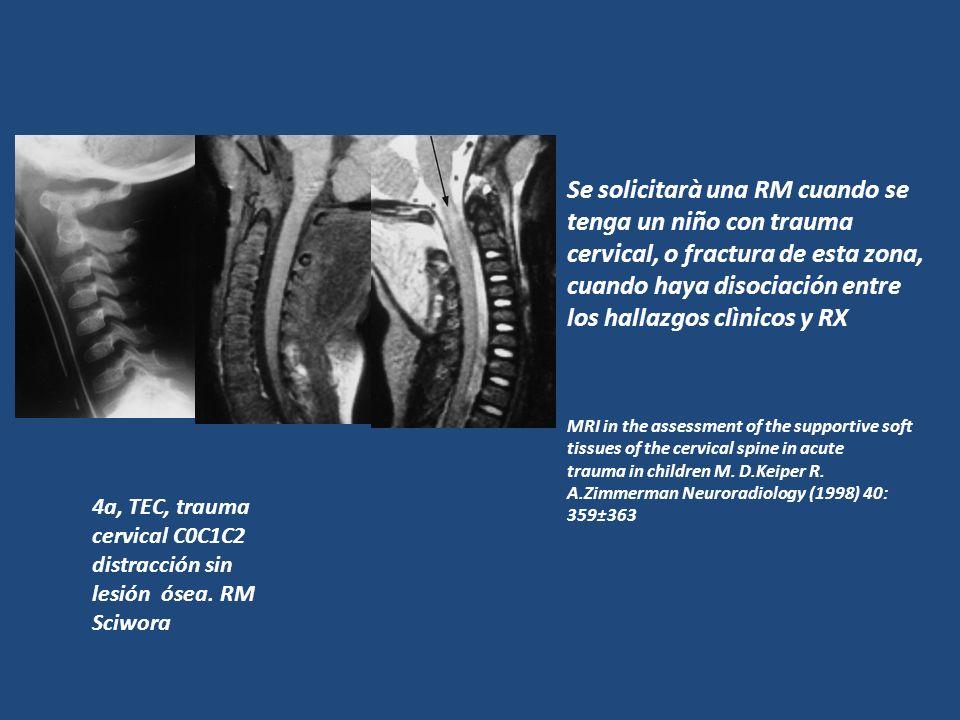 Se solicitarà una RM cuando se tenga un niño con trauma cervical, o fractura de esta zona, cuando haya disociación entre los hallazgos clìnicos y RX M