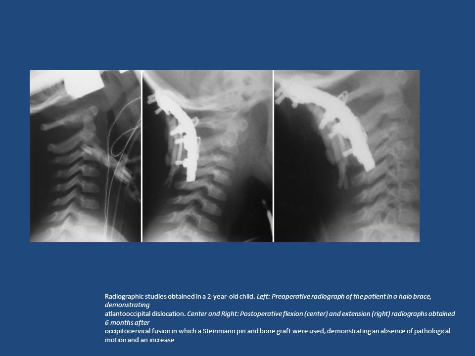 Radiographic studies obtained in a 2-year-old child.