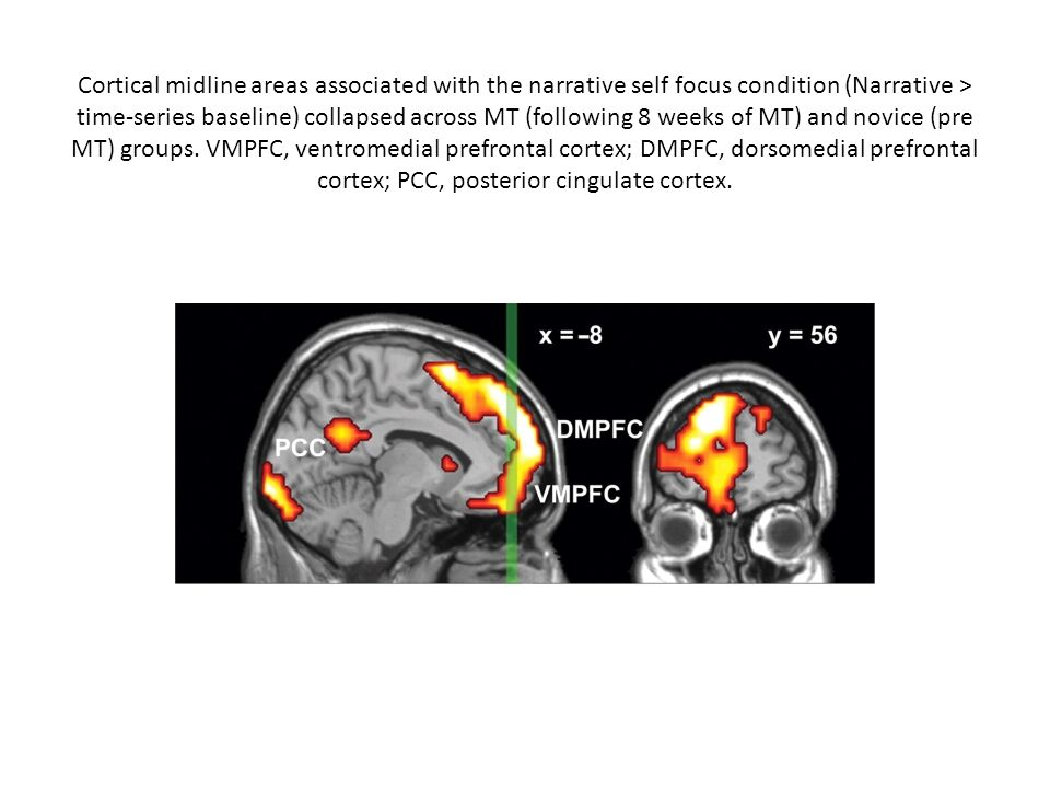 Cortical midline areas associated with the narrative self focus condition (Narrative > time-series baseline) collapsed across MT (following 8 weeks of