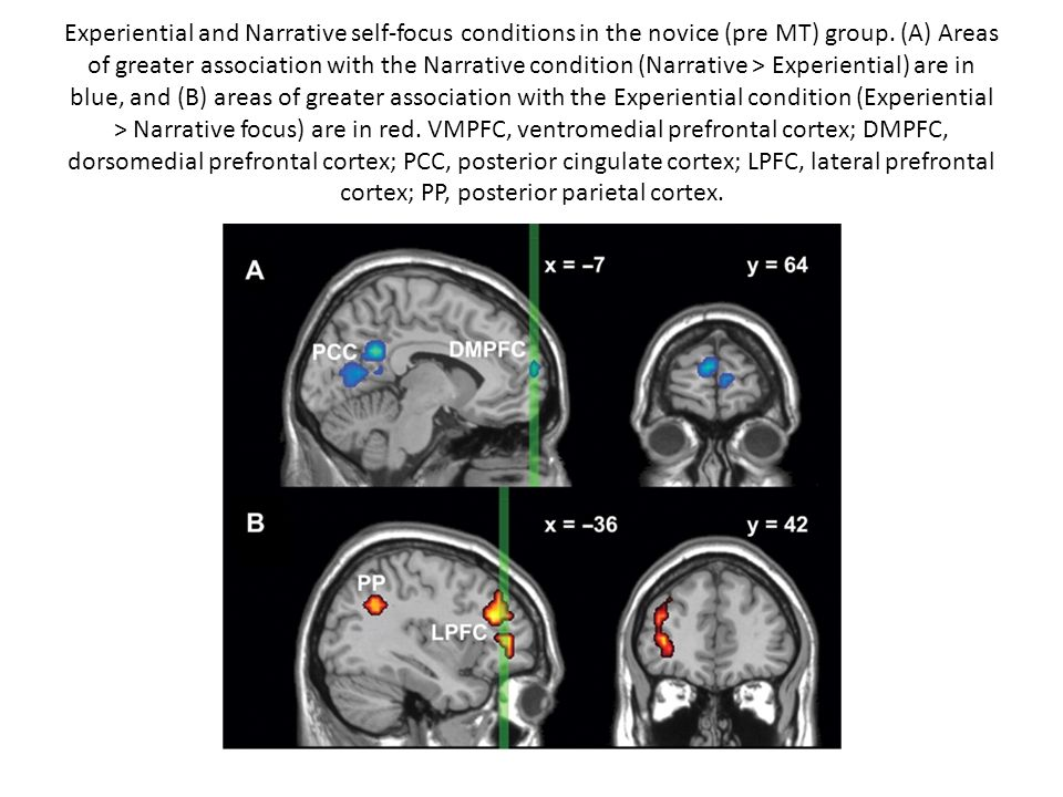 Experiential and Narrative self-focus conditions in the novice (pre MT) group. (A) Areas of greater association with the Narrative condition (Narrativ