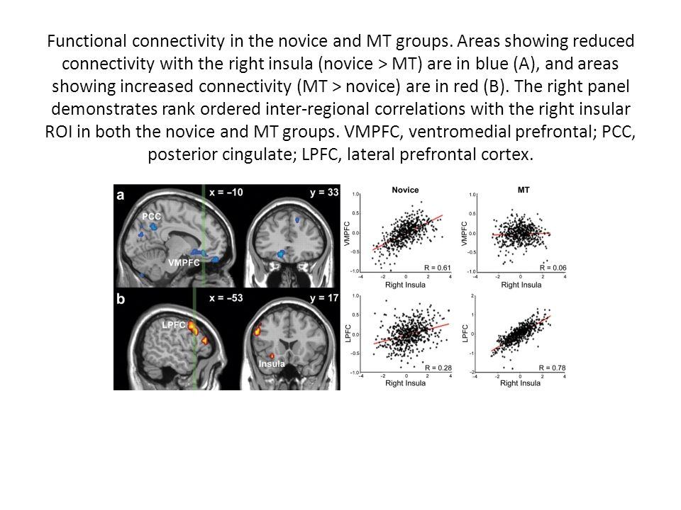 Functional connectivity in the novice and MT groups. Areas showing reduced connectivity with the right insula (novice > MT) are in blue (A), and areas